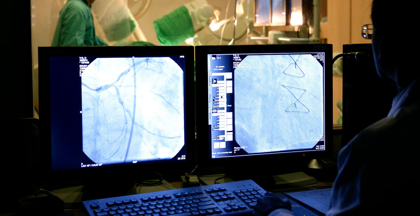 A Millar doctor uses two monitors to study catheters